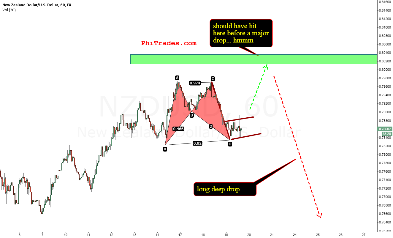 NZD up or down?
