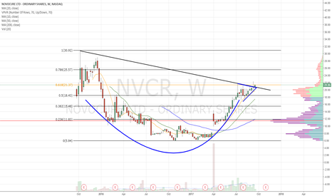 NVCR: Cup and handle
