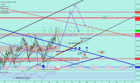 """XAUUSD: Jnug to Gold """"can't ignore the breakout any longer"""""""