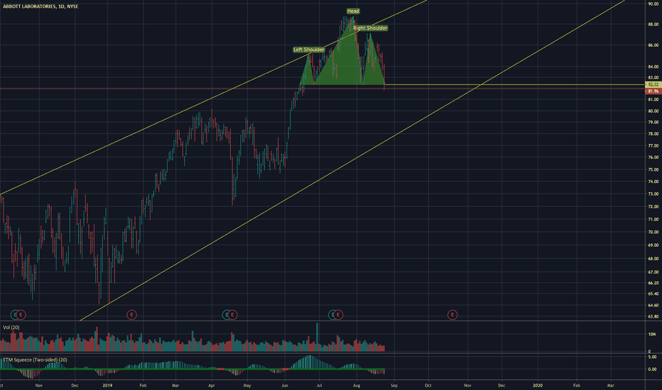 ABT Stock Price and Chart — NYSE:ABT — TradingView