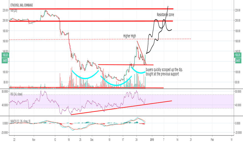 ETHUSD: Are you positioned right for the next ETH move up?