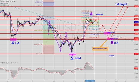 XAUUSD: Gold 1H Forecasting (Modified chart)