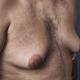 GynecomastTrader