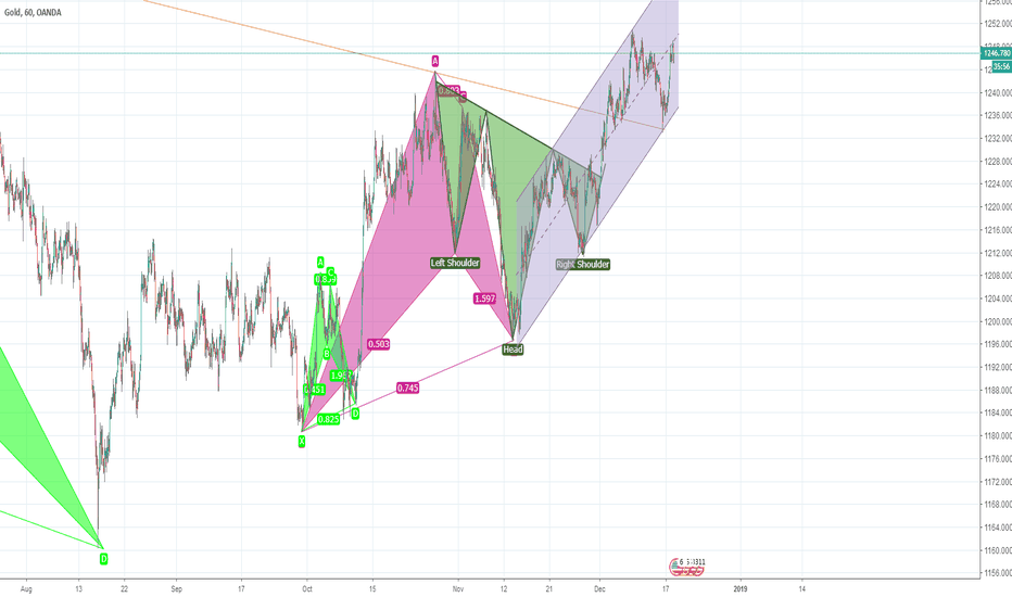 XAUUSD: Let's see the parallel channel